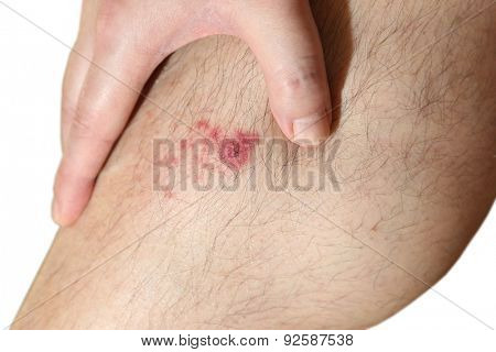 The wound on man's leg on white background