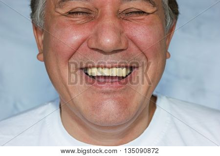 Laughing Man With False Teeth