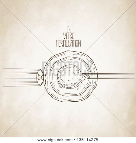 In vitor fertilisation. Artificial insemination. Graphic medical illustration. Vector design isolated aged paper