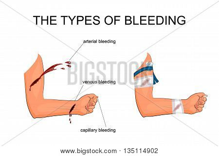 illustration of hand with the types of bleeding. The imposition of hemostatic tourniquet and a pressure bandage