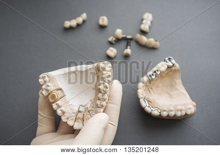 Dentures and plaster jaw in dentist hand flat lay. Top view on different dentures and dental crowns and plaster jaws, one in dentist hand.