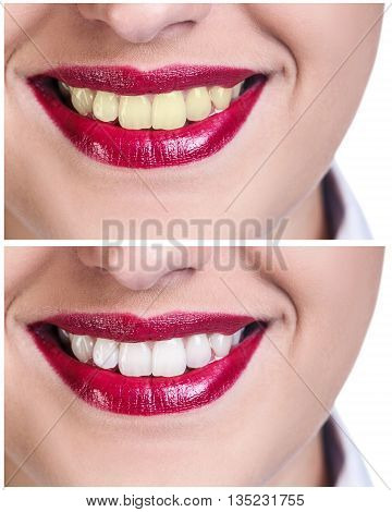 Teeth before and after bleaching treatment. Whitening concept.