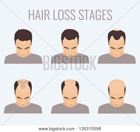 Male hair loss stages set. Top view portrait of a man losing hair. Male pattern baldness. Transplantation of hair. Signs of balding. Frontal hair loss. Vector illustration.