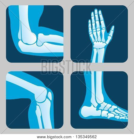 Human joints, knee joint, elbow joint, ankle joint, wrist. Medical orthopedic vector of set. Anatomy orthopedic human joint and illustration icon leg and hand joint