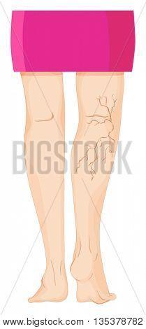 Varicose veins on human legs illustration