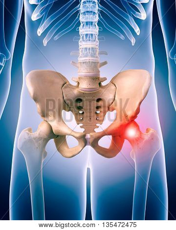 3d rendered, medically accurate 3d illustration of painful hip
