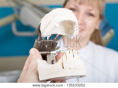 The reception was at the female dentist. dentist holding a dental casts