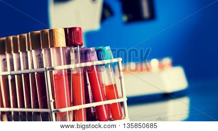 Test tubes with blood samples for testing for the coronavirus. Tonet photo