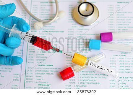 Blood sample for uric acid test, gouty arthritis diagnosis