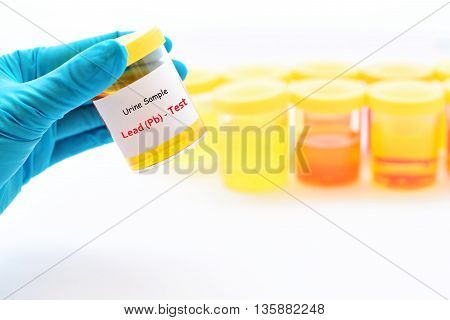 Urine sample for lead (heavy metal) test