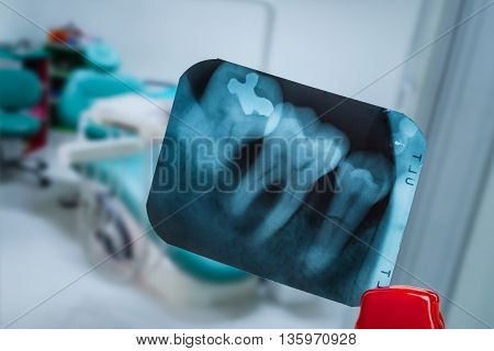 Tooth And Overlapping Teeth In X-ray Film Showing And Tweezer Against Dentist Clinic Blur Background