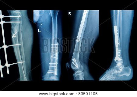Collection X-rays Image Of Human ,show Fracture  Lower Extremity With Implant