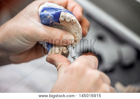 Technician working on the denture, denture concept