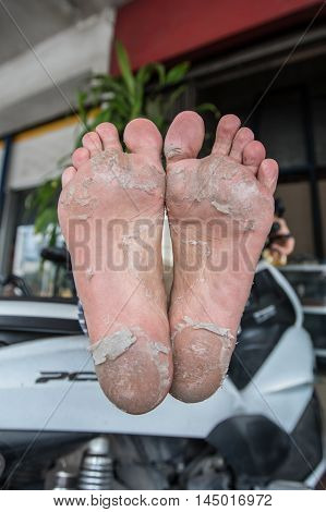 Peel the feet of women who are in bad condition.