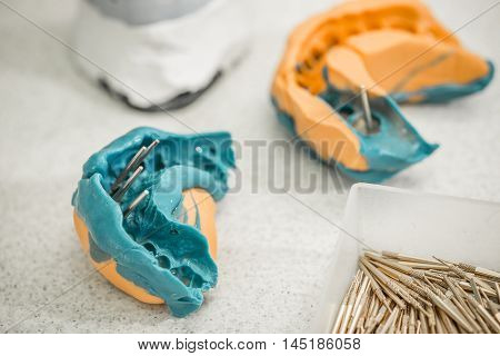 Denture Concept