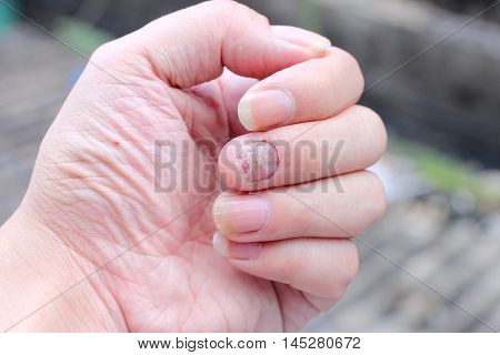 Fungus Infection On Nails Hand, Finger With Onychomycosis. - Soft Focus