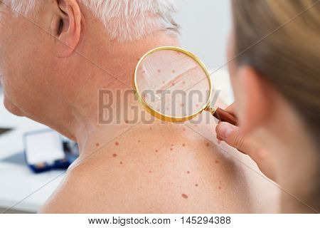 Close-up Of A Doctor Checking Skin Of Senior Male Patient With Magnifying Glass