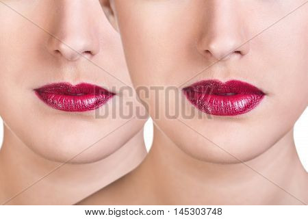 Before and after lip filler injections. Close up over white background