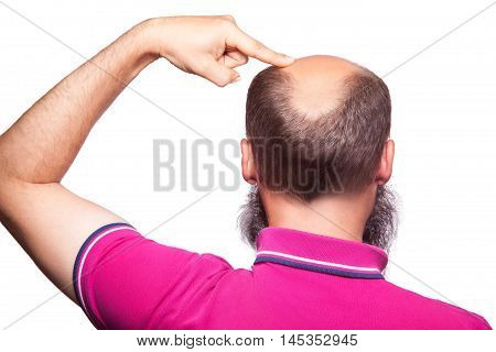 Man Alopecia Baldness Hair Loss Isolated.