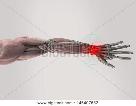 Anatomy model showing wrist pain. On plain studio background. 3D illustration