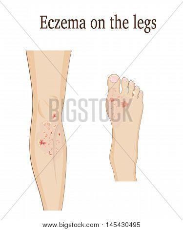 Eczema on the leg and on the upper part of the foot