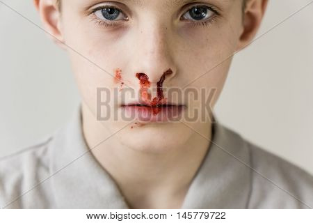 Boy With Nose Bleed Staring Blankly At Camera