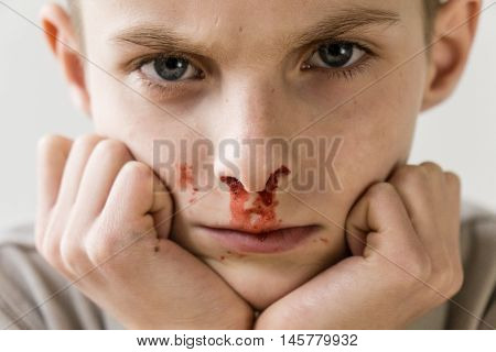 Boy With Nose Bleed Resting Chin On Hands