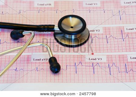 Ecg With Stethescope