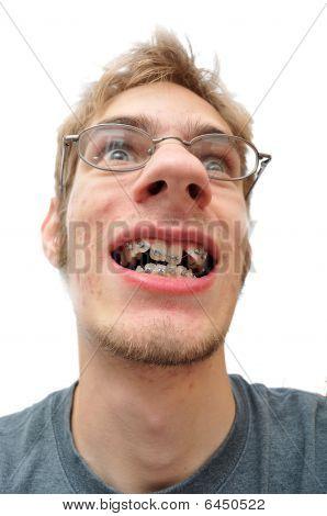 Man Smiling Showing His Braces