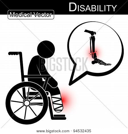 Vector Stick Man With Leg Fracture On Wheelchair
