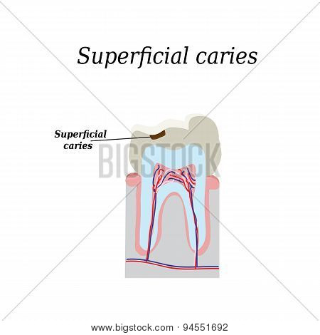 Home tooth caries. Vector illustration on isolated background