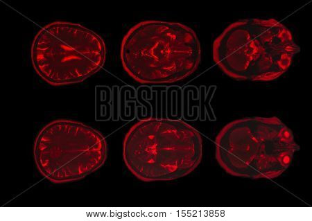 X-ray image of the brain computed tomography red