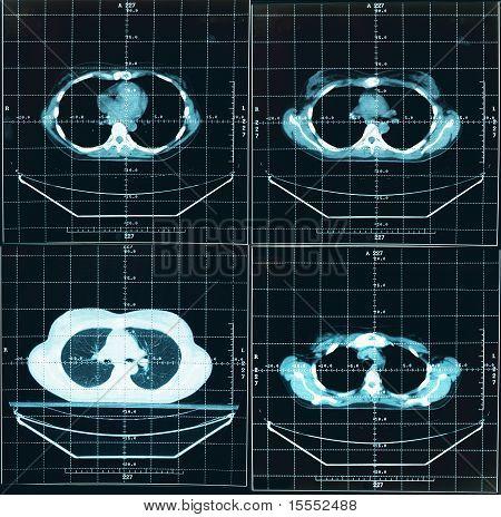 Tomography Of Human Thorax