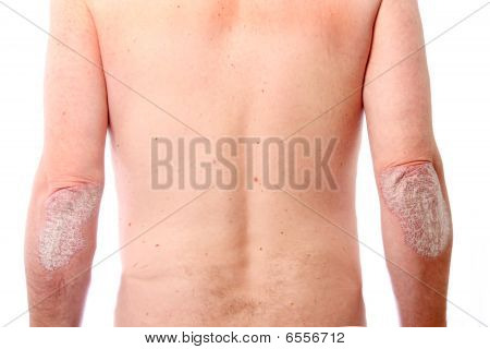 Psoriasis On Both Elbows