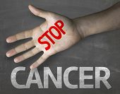 foto of causes cancer  - Creative composition with the message Stop Cancer - JPG