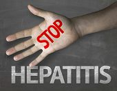 stock photo of hepatitis  - Creative composition with the message Stop Hepatitis - JPG