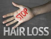 stock photo of alopecia  - Educational and Creative composition with the message Stop Hair Loss on the blackboard - JPG