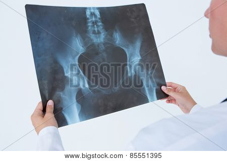 Concentrate doctor looking at X-Rays on white background