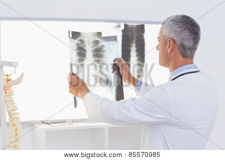 Concentrate doctor looking at X-Rays in medical office