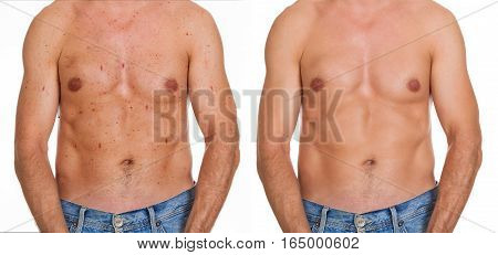 Close-up Of Man Showing Before And After Result Of Skin Treatment On White Background