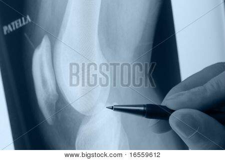 pen showing X-ray picture of knee joints on screen
