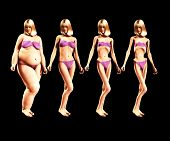 picture of bulimic  - An image of a women who has gone from being fat to very very thin a useful image about weight loss - JPG