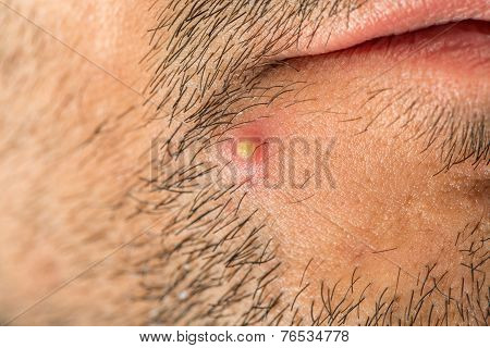 Caucasian man with stub and big pimple
