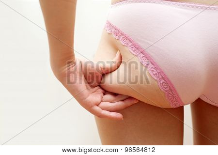 Young woman is touching her skin on buttock