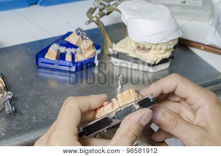 A Dentist / Dental Technician Working The Partial Denture.