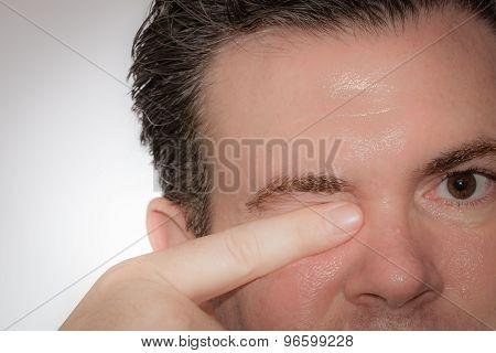 Eye Rub