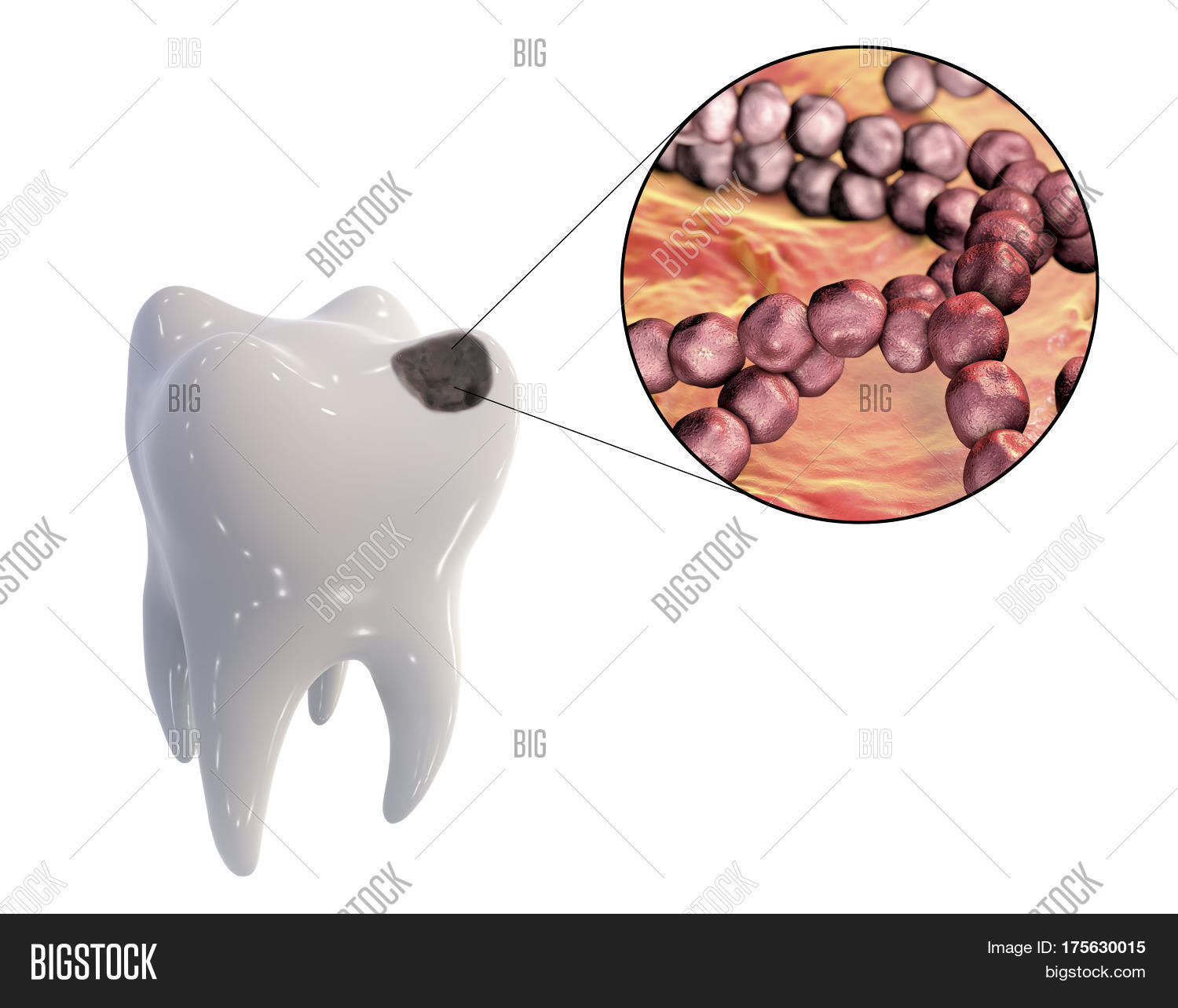 dental caries and streptococcus mutans Correlation between dental caries experience and mutans streptococci counts by  microbial and molecular (polymerase chain reaction) assay using saliva as.
