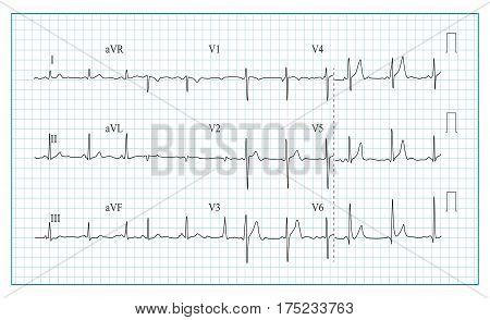 poster of Heart Cardiogram Chart Vector. Illustration Of Wave Form On Checked Ecg Graph. Heart Rhythm, Ischemia, Infarction. Heartbeat