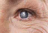 Cataract concept. Senior womans eye, closeup poster
