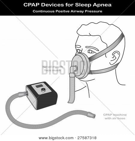 Sleep Apnea, Cpap Machine, Nose Mouth Mask